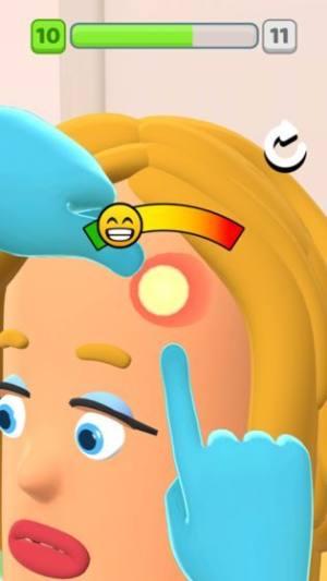模拟挤痘痘小游戏官方安卓版图片1